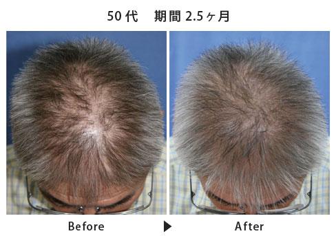 男性の本格育毛・発毛・薄毛治療  ヘアインパクトコース施術例
