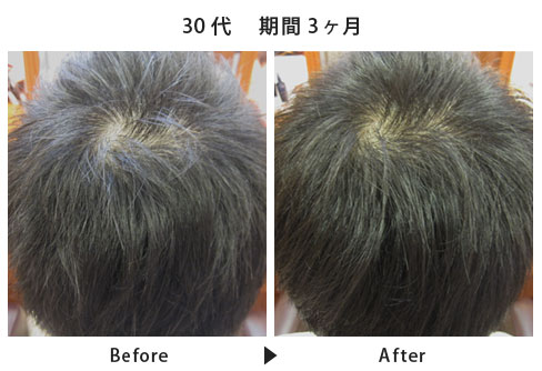 男性の育毛・発毛・薄毛治療  スカルプケアコース施術例