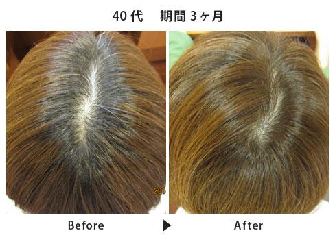 女性の本格育毛・発毛・薄毛治療  ヘアインパクトコース施術例