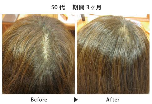 女性の育毛・発毛・薄毛治療  スカルプケアコース施術例